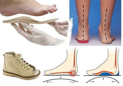 Ортопедическая обувь Купить Киев